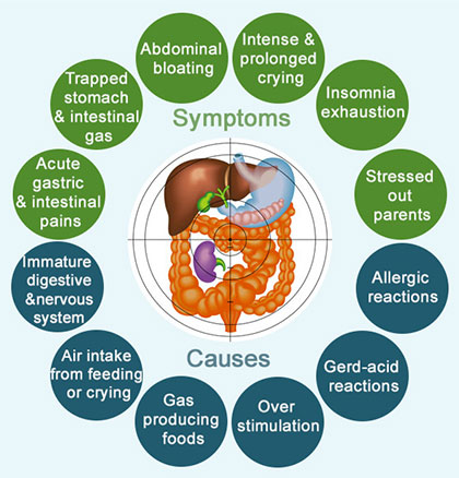 Symptoms and Causes of Bloating and Gas