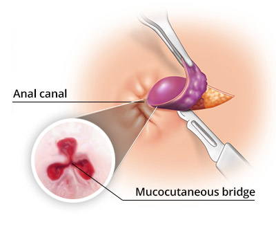 Hemorrhoidectomy Surgery in NYC