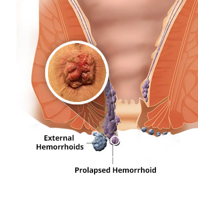 Prolapsed Hemorrhoid Treatment in NYC